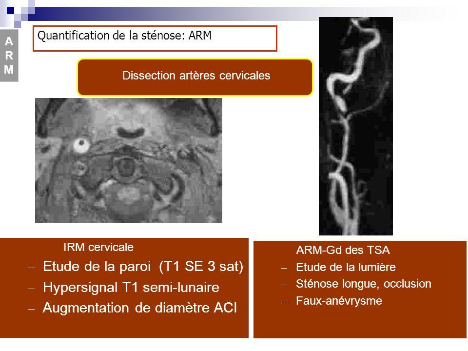 Dissection artères cervicales
