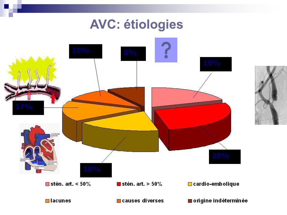AVC: étiologies 8% 10% 17% 28% 19% 18%