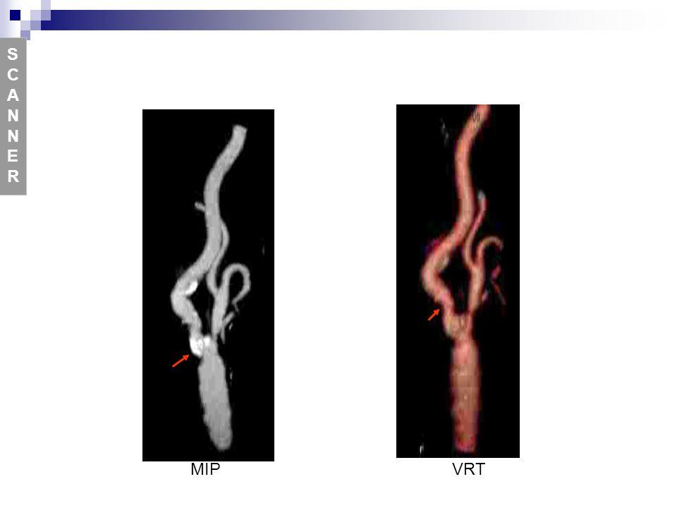 S CA N NE R MIP VRT Figure 13 Angioscanner