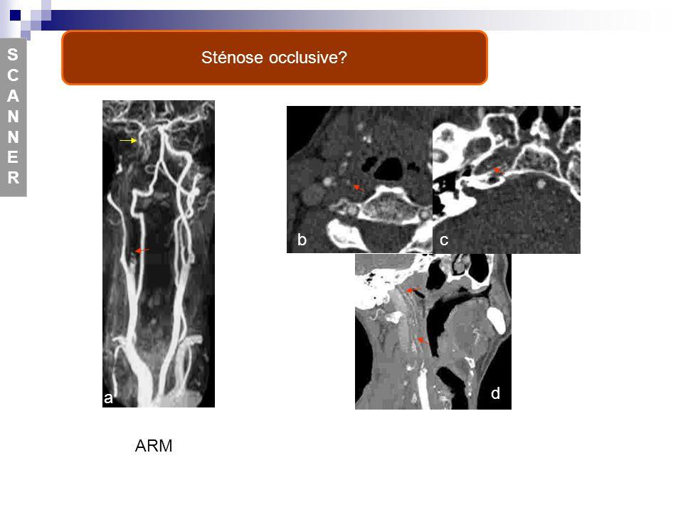 Sténose occlusive S CA N NE R b c a d ARM e f Figure 17