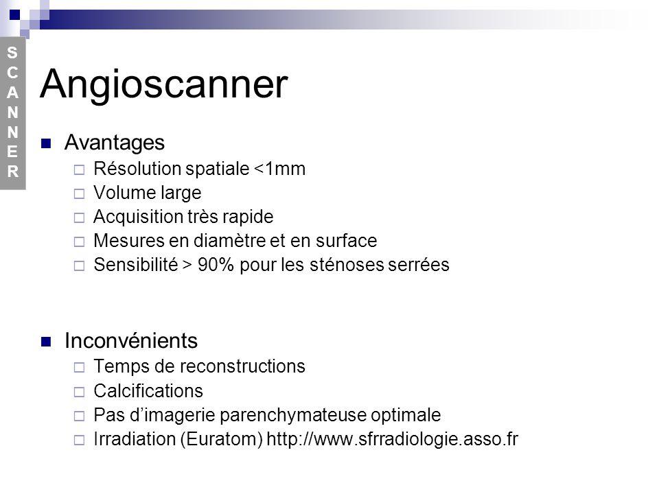 Angioscanner Avantages Inconvénients Résolution spatiale <1mm
