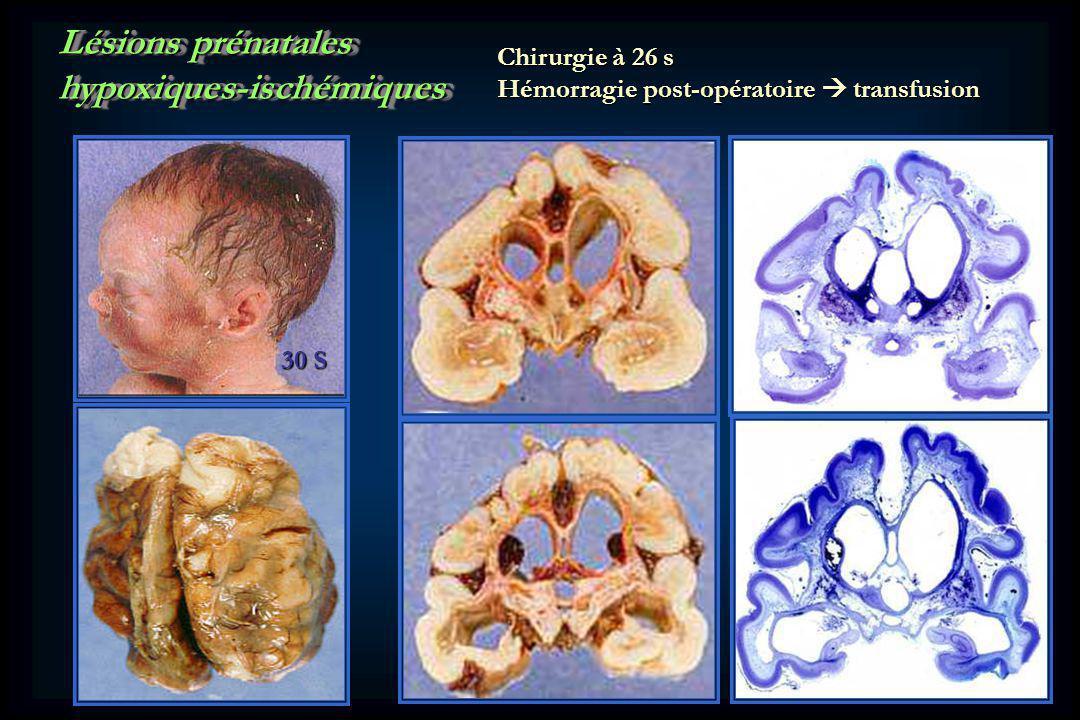 hypoxiques-ischémiques