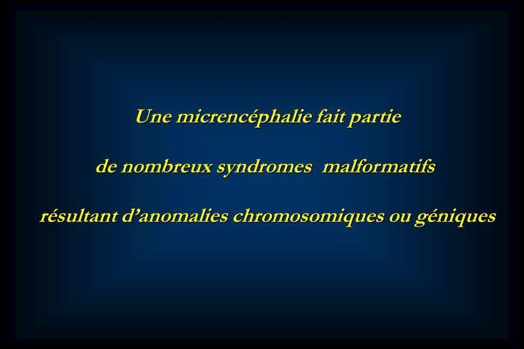 de nombreux syndromes malformatifs
