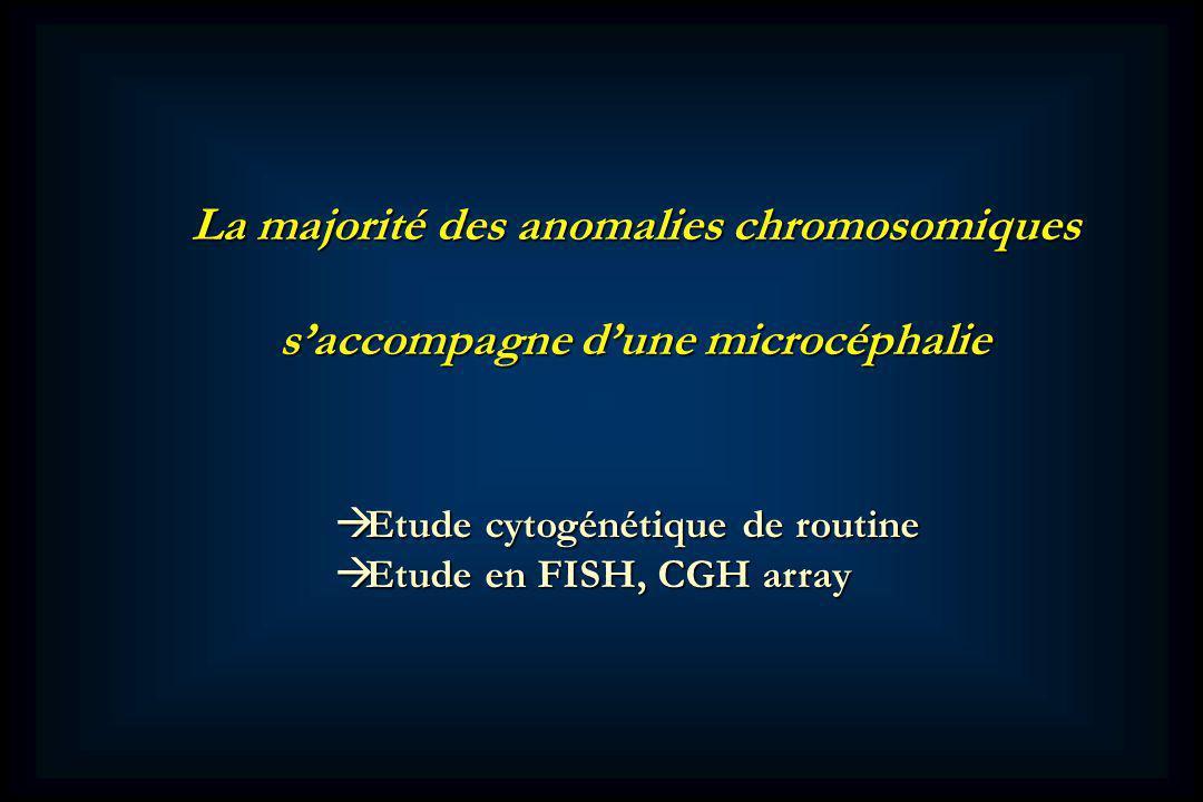 La majorité des anomalies chromosomiques