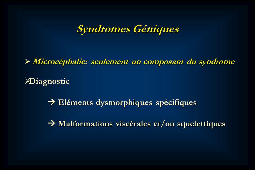 Syndromes Géniques Diagnostic  Eléments dysmorphiques spécifiques