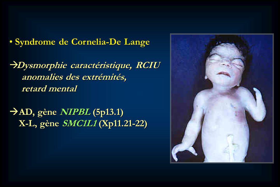 Syndrome de Cornelia-De Lange