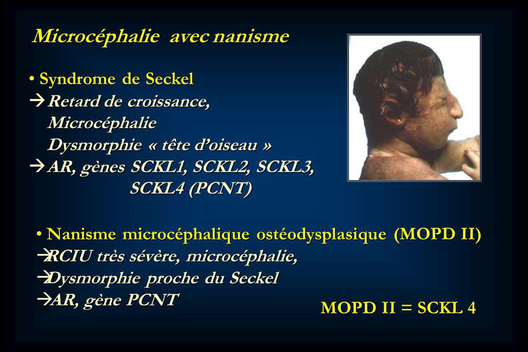 Microcéphalie avec nanisme