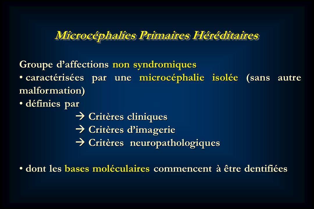 Microcéphalies Primaires Héréditaires