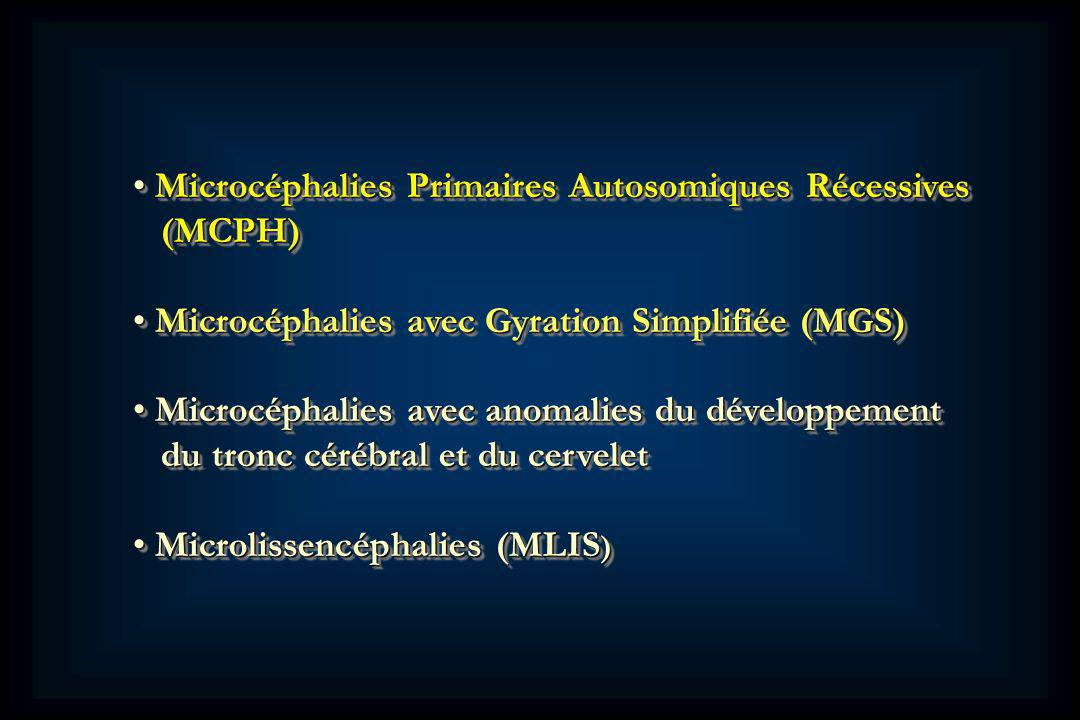 Microcéphalies Primaires Autosomiques Récessives