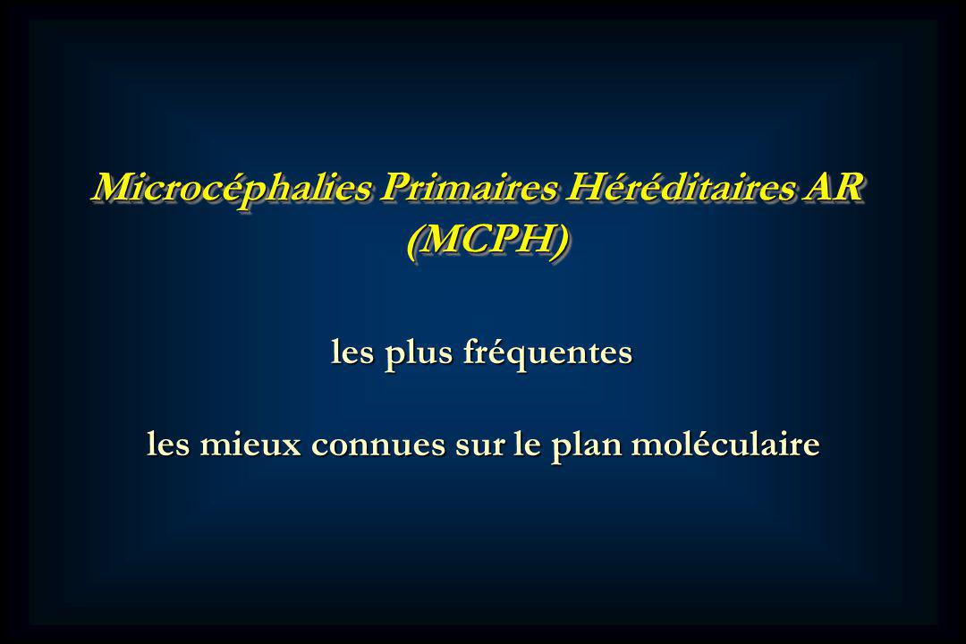 Microcéphalies Primaires Héréditaires AR (MCPH)