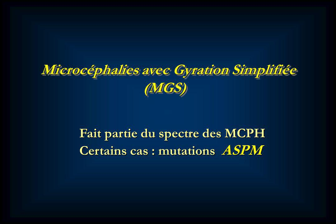 Microcéphalies avec Gyration Simplifiée