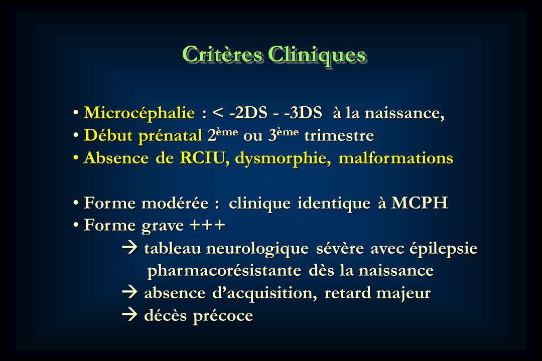 Critères Cliniques Microcéphalie : < -2DS - -3DS à la naissance,