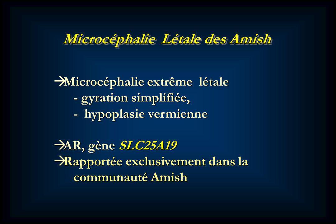 Microcéphalie Létale des Amish