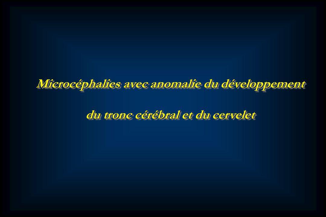 Microcéphalies avec anomalie du développement