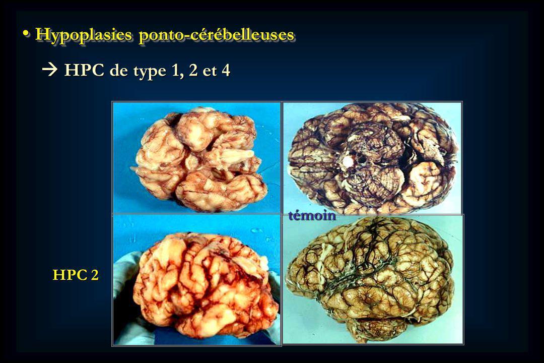 Hypoplasies ponto-cérébelleuses