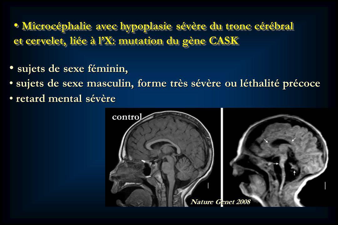 Microcéphalie avec hypoplasie sévère du tronc cérébral et cervelet, liée à l'X: mutation du gène CASK