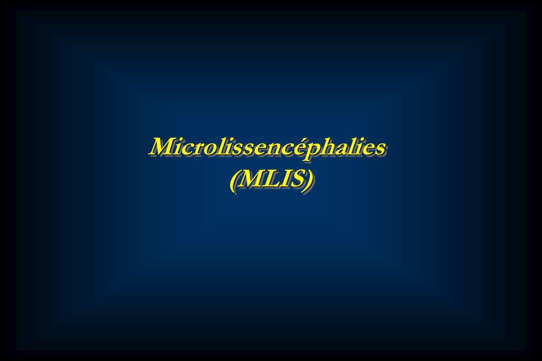 Microlissencéphalies