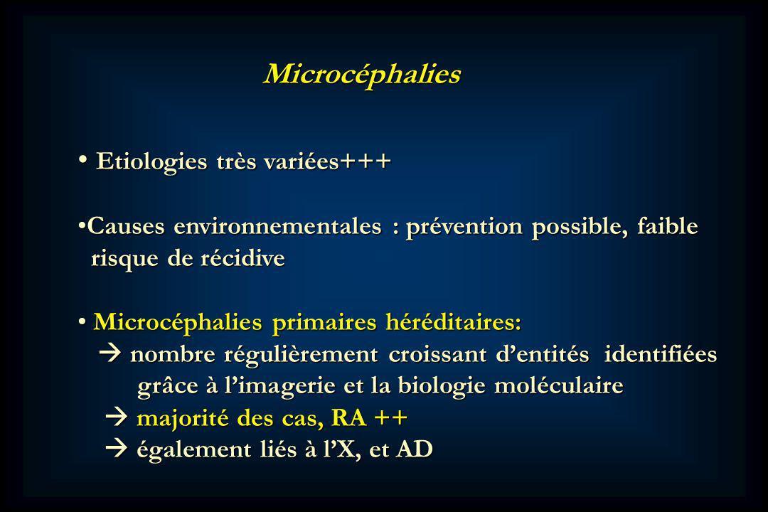 Etiologies très variées+++