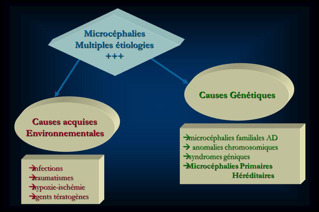 Microcéphalies Multiples étiologies +++ Causes Génétiques