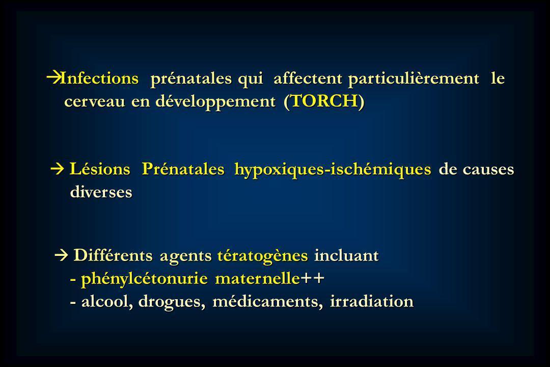 Infections prénatales qui affectent particulièrement le