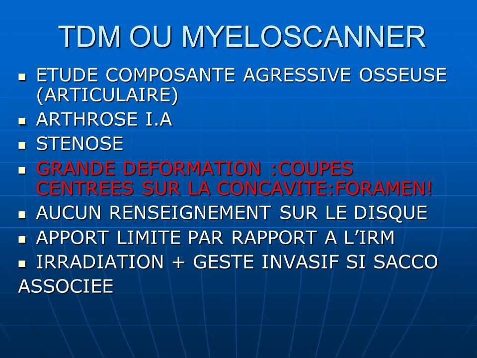 TDM OU MYELOSCANNER ETUDE COMPOSANTE AGRESSIVE OSSEUSE (ARTICULAIRE)