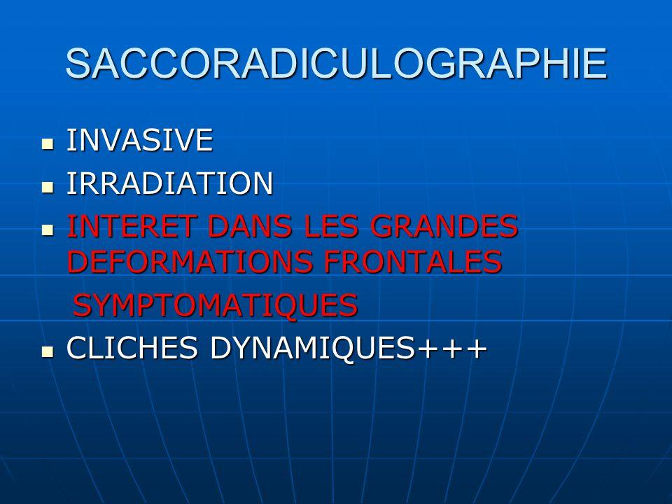 SACCORADICULOGRAPHIE