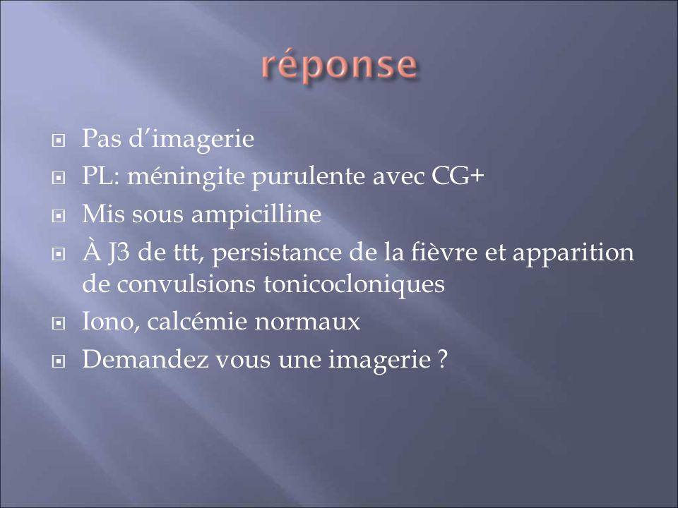 Pas d'imagerie PL: méningite purulente avec CG+ Mis sous ampicilline.