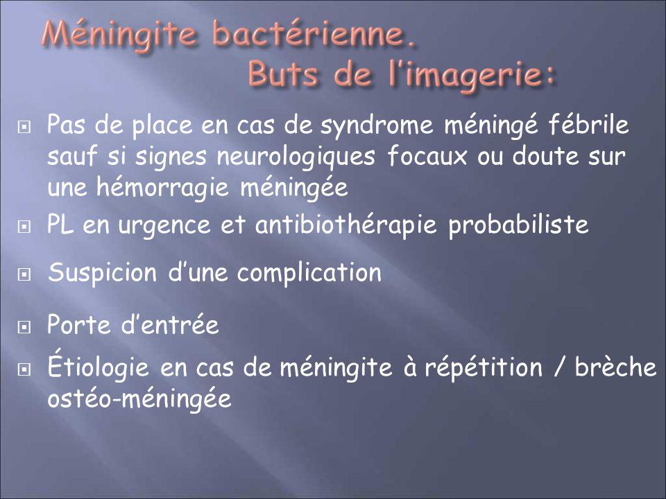 Pas de place en cas de syndrome méningé fébrile sauf si signes neurologiques focaux ou doute sur une hémorragie méningée