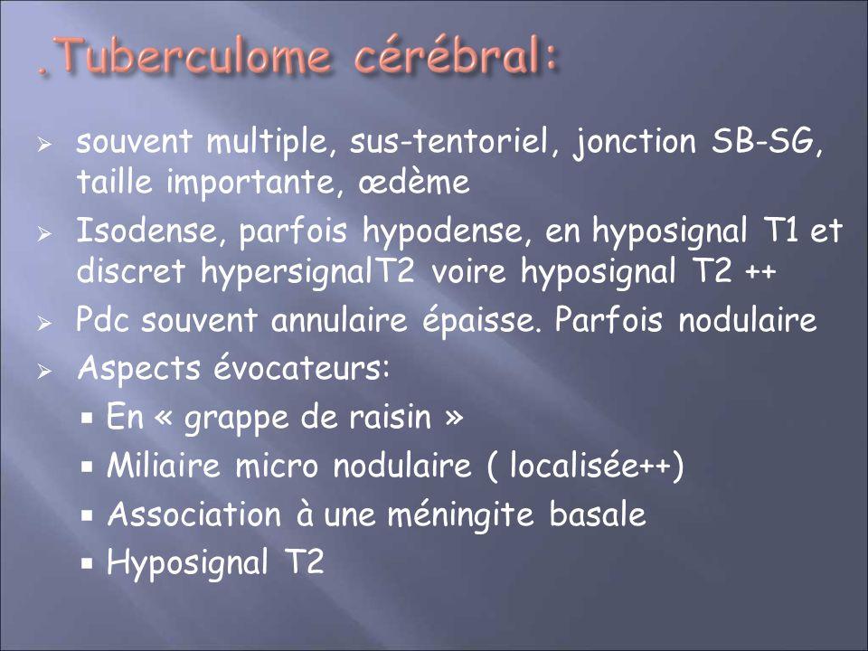 souvent multiple, sus-tentoriel, jonction SB-SG, taille importante, œdème