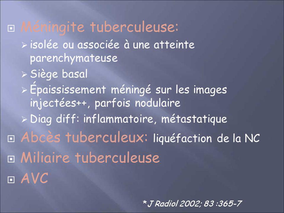 Méningite tuberculeuse: