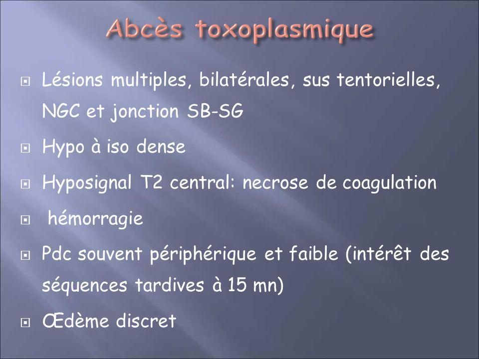 Lésions multiples, bilatérales, sus tentorielles, NGC et jonction SB-SG
