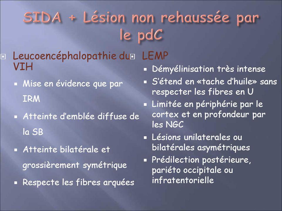 Leucoencéphalopathie du VIH LEMP