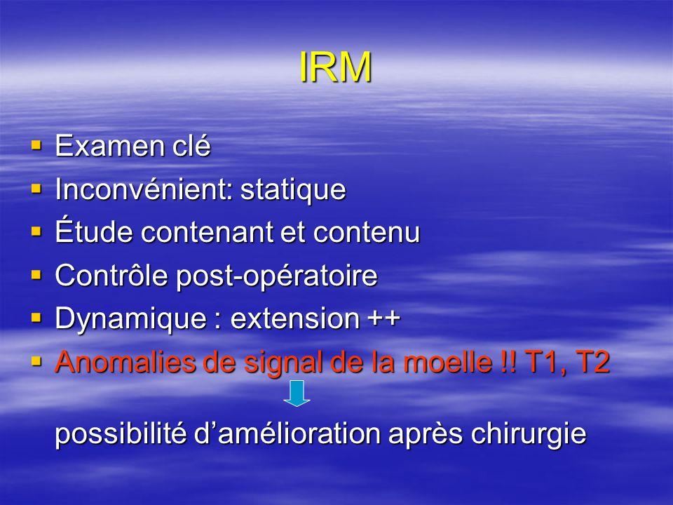 IRM Examen clé Inconvénient: statique Étude contenant et contenu
