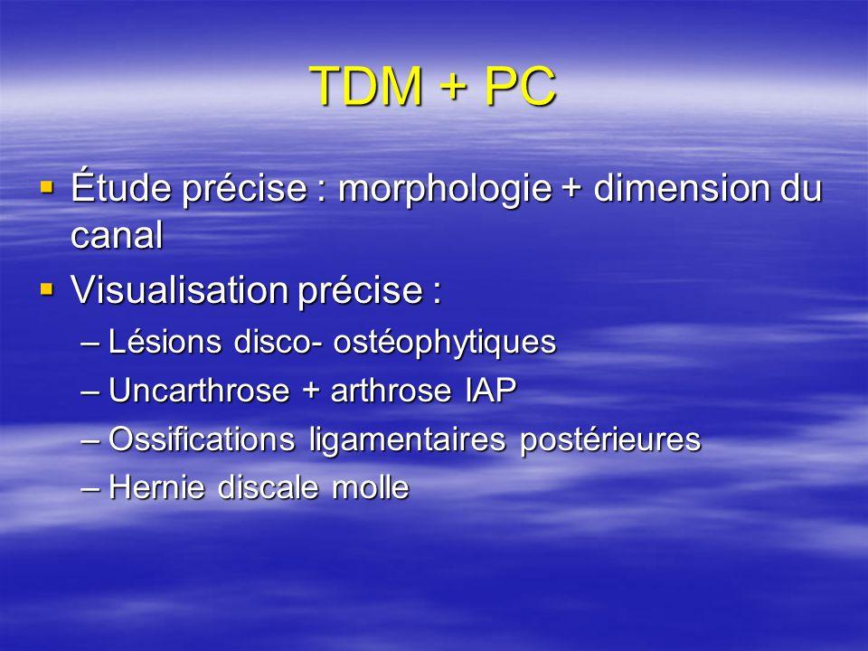 TDM + PC Étude précise : morphologie + dimension du canal