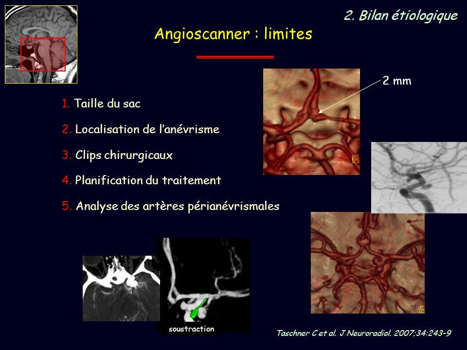 Angioscanner : limites