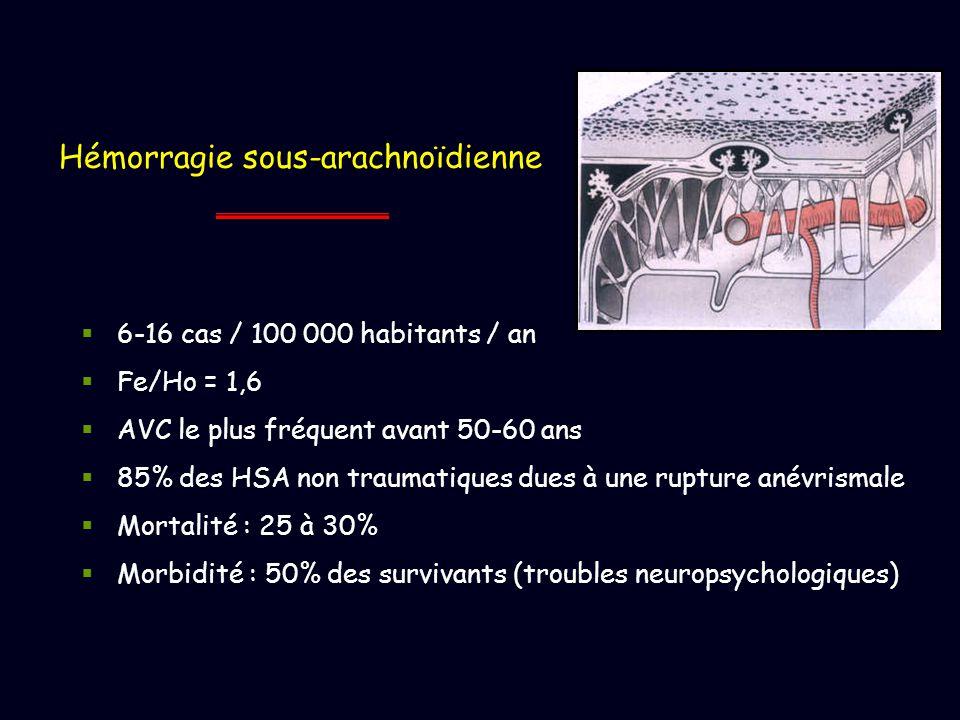 Hémorragie sous-arachnoïdienne