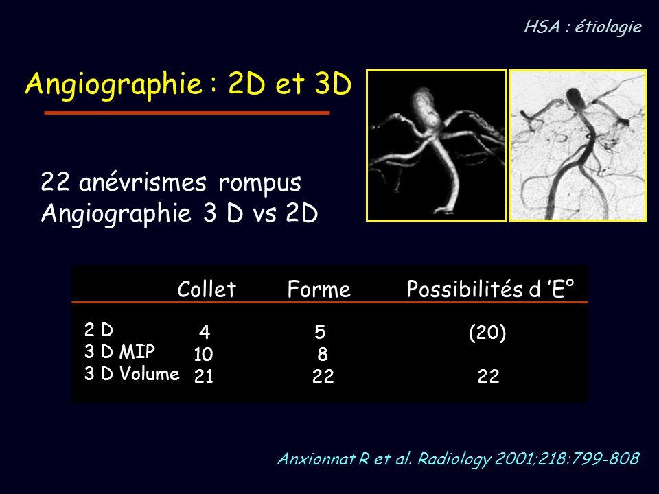 Angiographie : 2D et 3D 22 anévrismes rompus Angiographie 3 D vs 2D