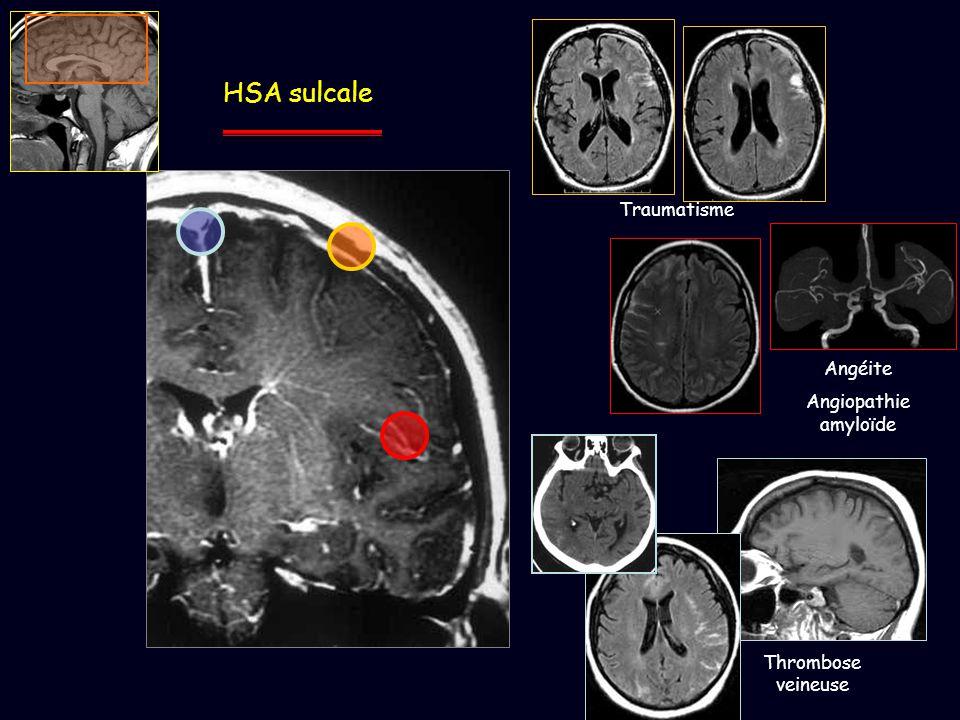 HSA sulcale Traumatisme Angéite Angiopathie amyloïde