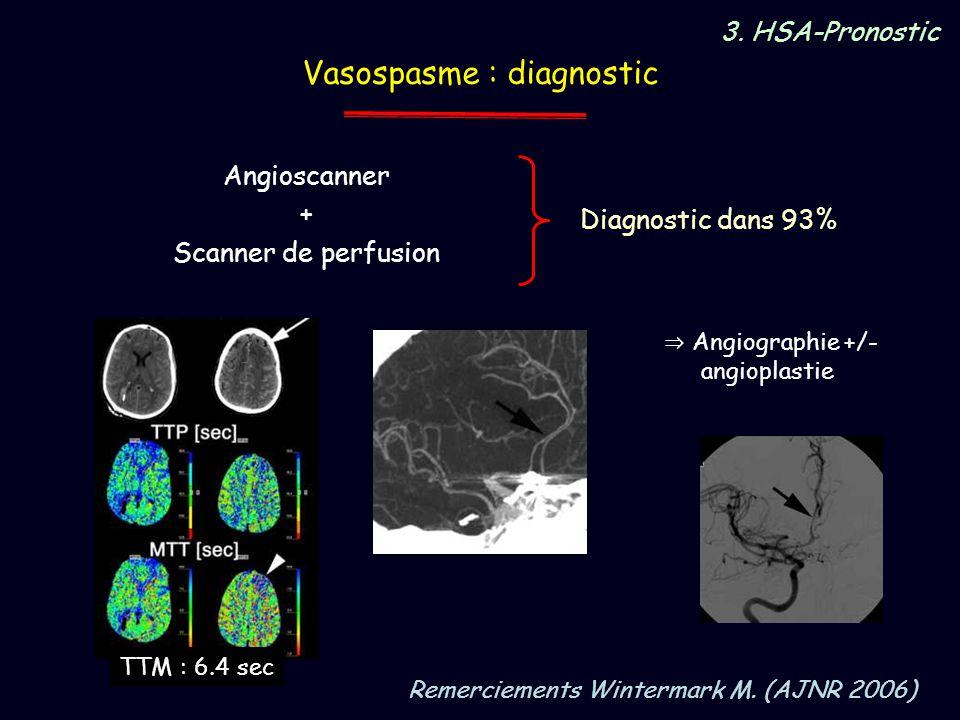 Vasospasme : diagnostic