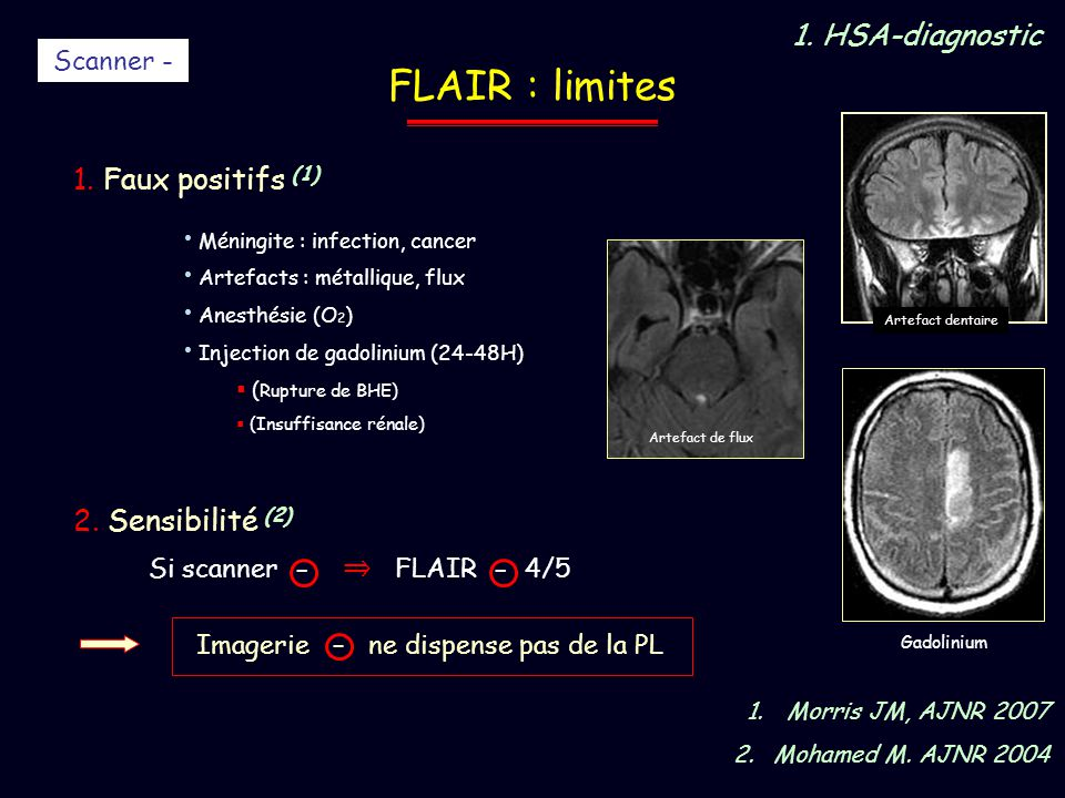 FLAIR : limites 1. HSA-diagnostic 1. Faux positifs (1)