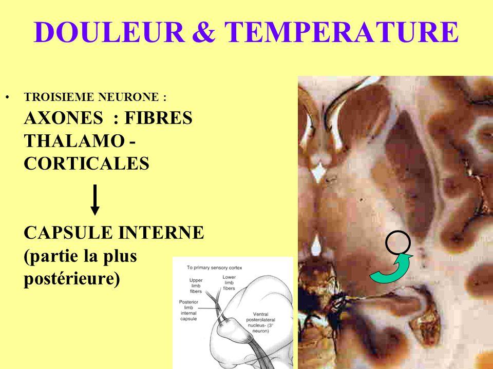 DOULEUR & TEMPERATURE TROISIEME NEURONE : AXONES : FIBRES THALAMO -CORTICALES CAPSULE INTERNE (partie la plus postérieure)