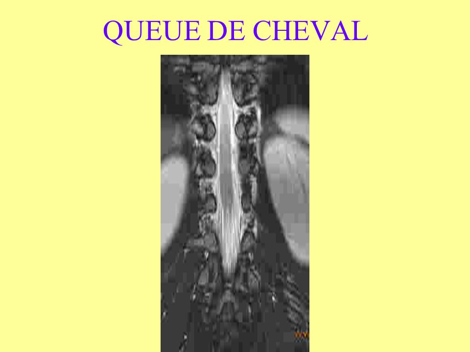 QUEUE DE CHEVAL