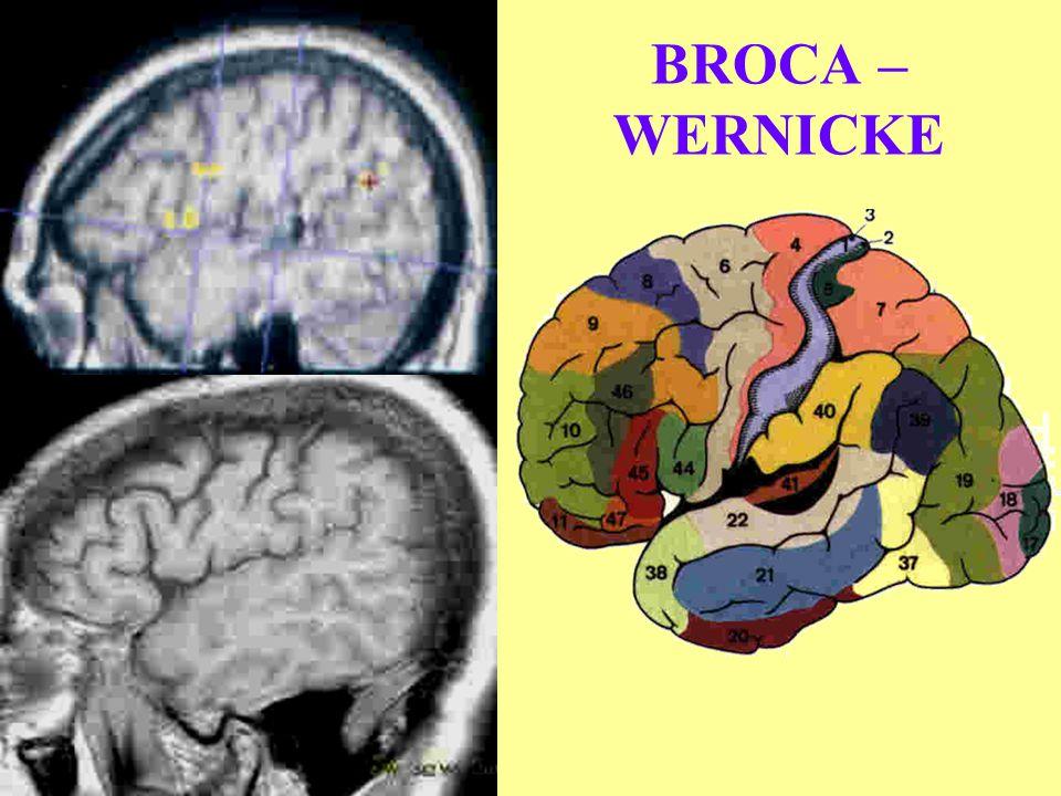 BROCA – WERNICKE NOMENCLATURE AIRE DE BROCA : AIRE DE LA MOTRICITE DU LANGAGE : AB 44/45.