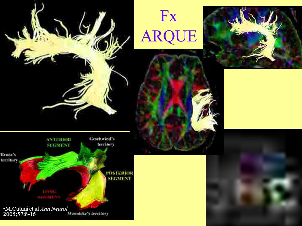 Fx ARQUE M.Catani et al Ann Neurol 2005;57:8-16
