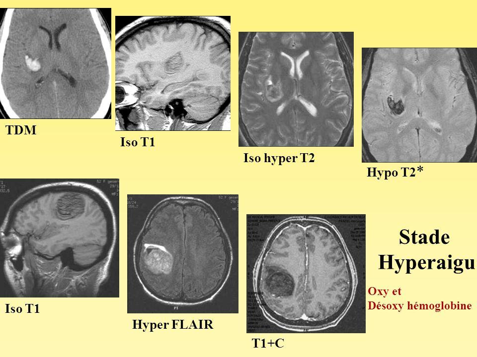 Stade Hyperaigu TDM Iso T1 Iso hyper T2 Hypo T2* Iso T1 Hyper FLAIR