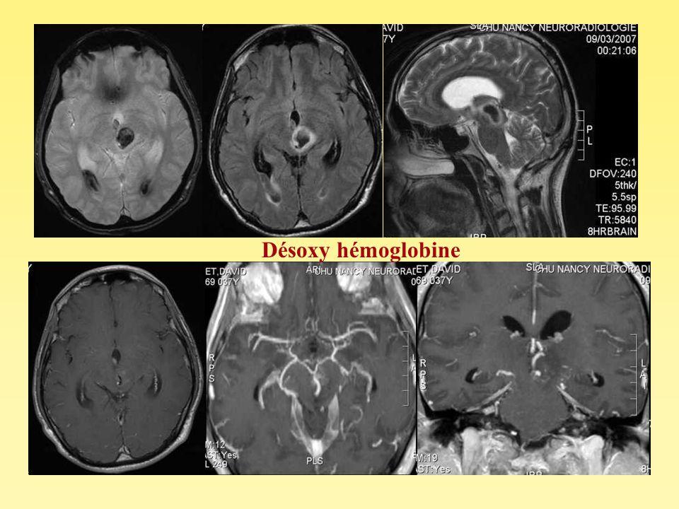 Désoxy hémoglobine