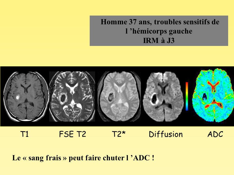 Homme 37 ans, troubles sensitifs de l 'hémicorps gauche IRM à J3