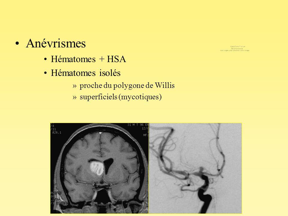 Anévrismes Hématomes + HSA Hématomes isolés