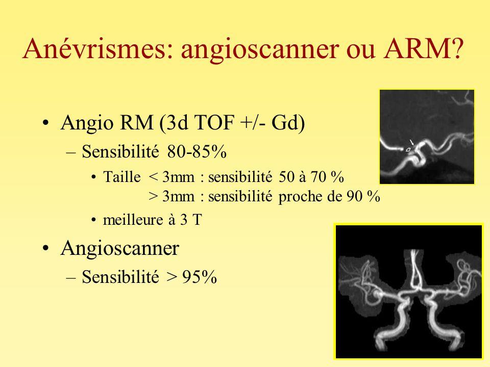 Anévrismes: angioscanner ou ARM