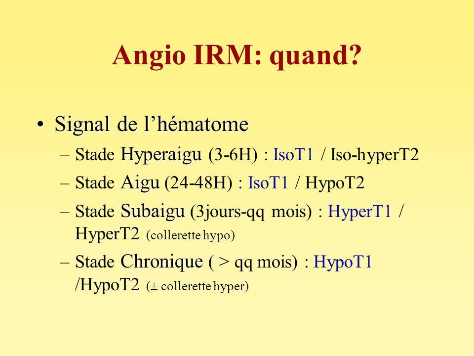 Angio IRM: quand Signal de l'hématome